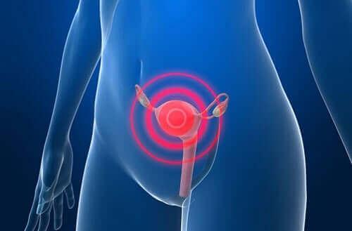 Лечение на рака на ендометриума след поставяне на диагноза