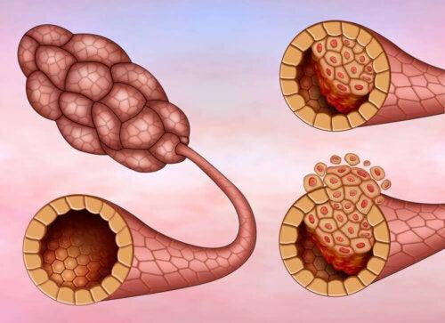 Заболяването рак на гърдата: рисунка на карцином