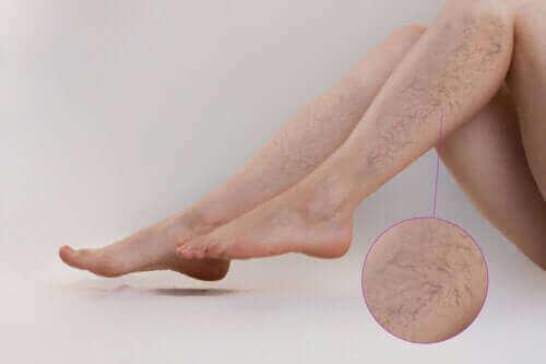 Видове упражнения за предпазване от разширени вени