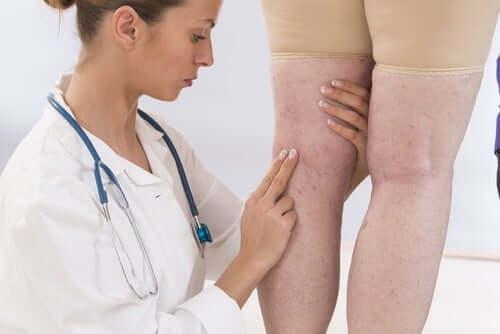 Предупредителни симптоми: възпалени крайници