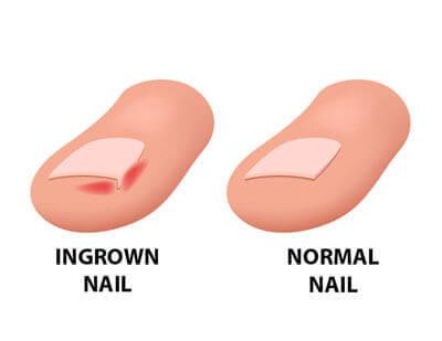 Рисунка на враснали нокти на краката