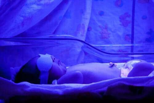 Жълтеница при новородените: Какво трябва да знаете
