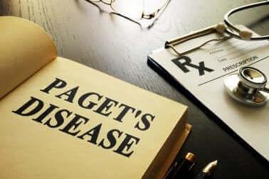 Болестта на Пейджет: всичко, което трябва да знаете