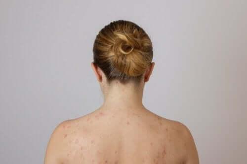 Обръщайте внимание на мастните бучки по гърба.