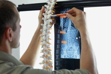 Метастазите в костите: симптоми и лечение