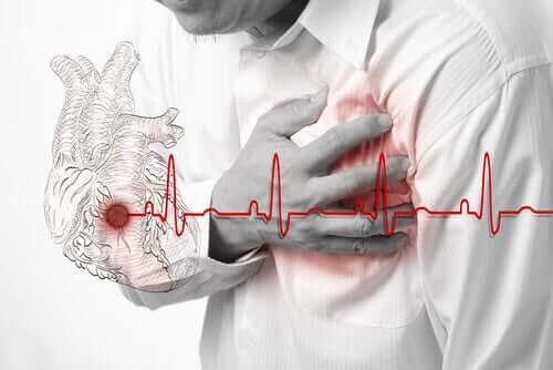 Аспиринът в ниски дози: снимка на мъж с инфаркт