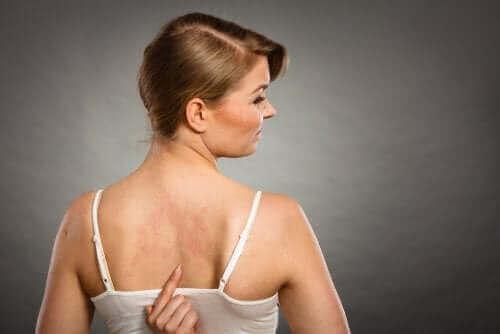 Хранителни добавки: жена с обрив на гърба