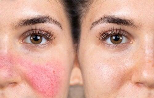 Реактивната кожа създава дискомфорт.