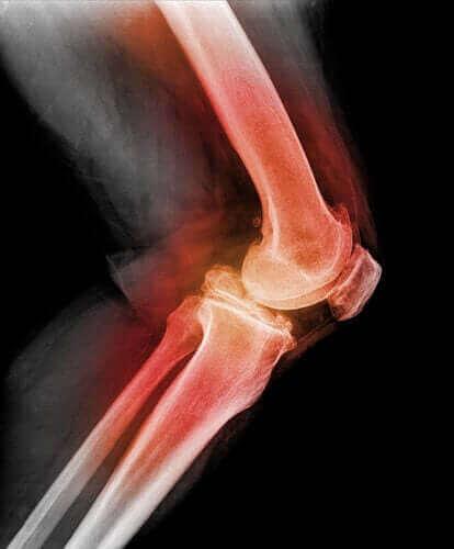 Научете всичко за дислокацията на коляното
