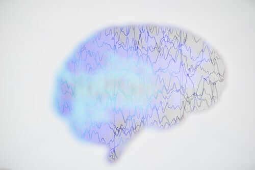 Епилептичен пристъп - видове