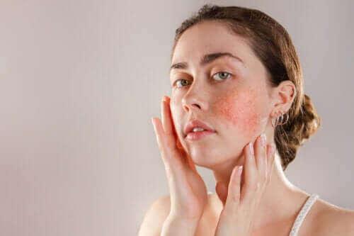 Реактивната кожа: симптоми, причини и лечение