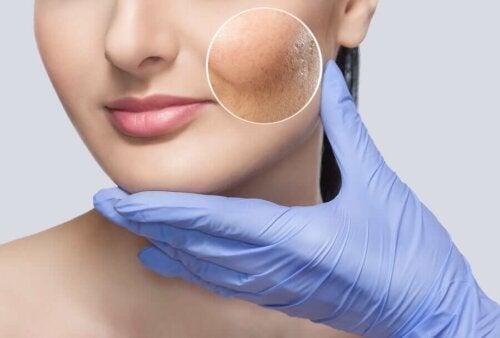 Третиране на реактивната кожа