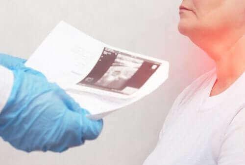 Възлите на щитовидната жлеза: Симптоми и причини