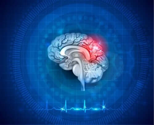Мозъчна хипоксия: рисунка на мозък