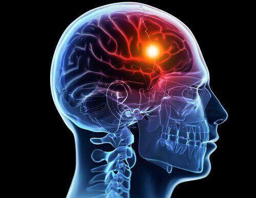 Мозък с осветление: схема