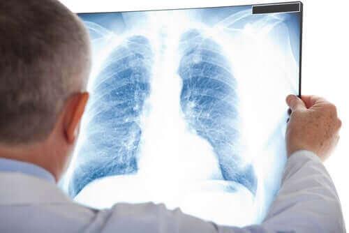 Лекар разчита рентгенова снимка