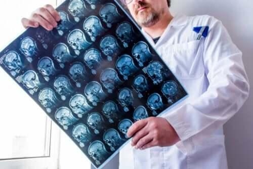 Видове епилепсия - симптоми и лечение