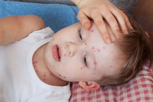 Как се лекува уртикарията при децата
