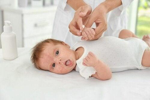 Грижата за кожата на новородените е много важна.