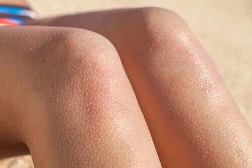 Пилоерекция: настръхване на кожата на краката