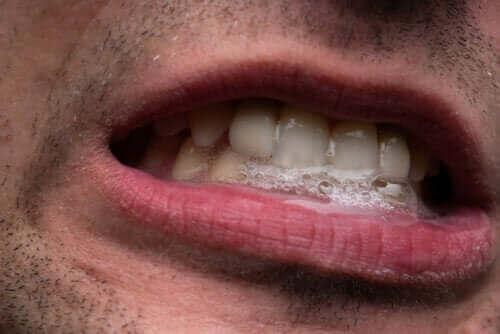 Характеристики и лечение на сиалорея