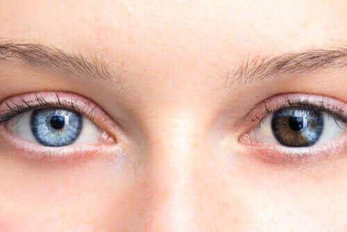 Промените в цвета на очите могат да бъдат притеснителни