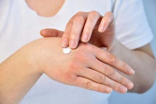 Сухи и напукани ръце: една жена ги маже с крем