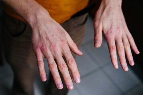 Сухи и напукани ръце: Предпазване от студа